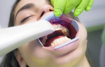 Jaw-Surgery