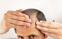Non-Surgical Options for Treating Hair Loss